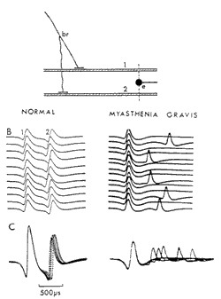الوهن العضلي Myasthenia Gravis myasthenia_Gravis.jpg